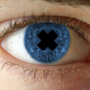 Beispiel: Gecrosste Pupille